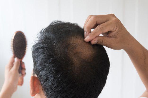 Alopecia en españa