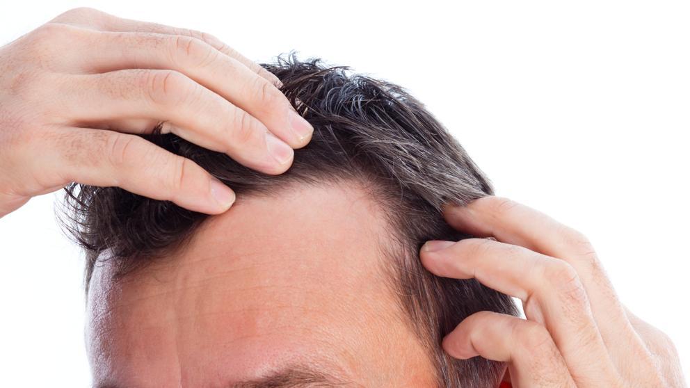 alopecia precoz