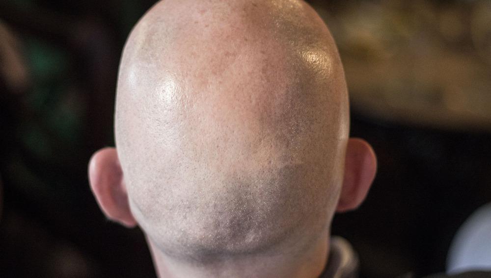 mejores tratamientos caída cabello