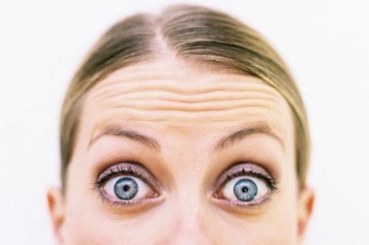 alopecia frontal
